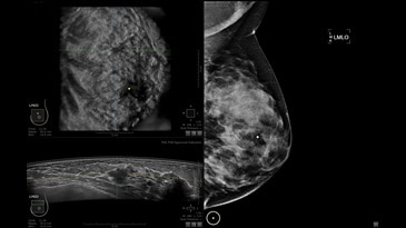 IDC grade 2 lesion with mammography