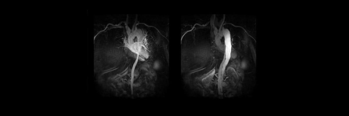 Vascular Imaging- TRICKS