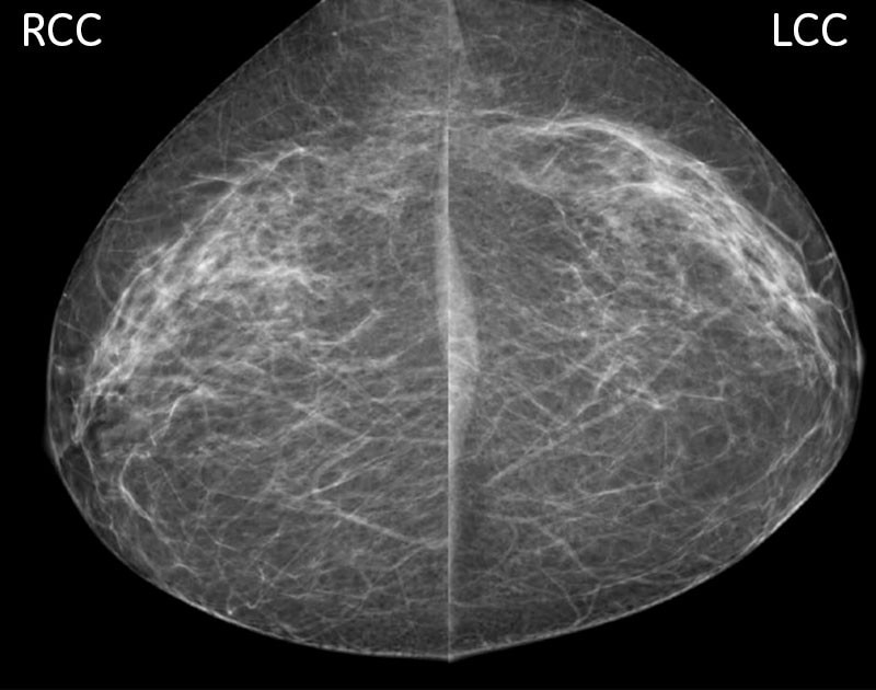 -new-senographe-crystal-senographe-crystal-breast-cancer-screening-and-diagnosis_case1.jpg
